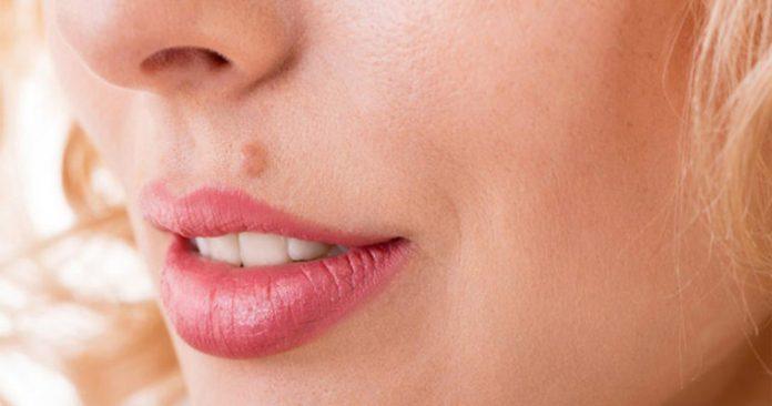 سرطان پوست را با این ۵ نوع خال بشناسید!
