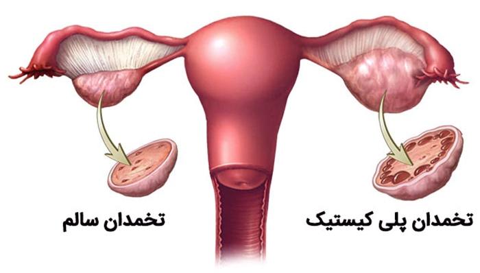 راه های درمان تنبلی تخمدان