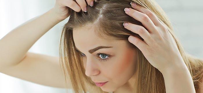 معرفی و بررسی چند نمونه قرص ریزش مو