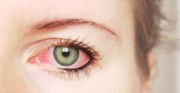 آشنایی با پماد چشمی اریترومایسین و چگونگی مصرف آن