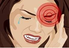 علائم میگرن چشمی چیست؟