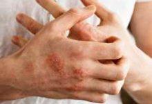 تصویر از معرفی ۳ پماد قارچ پوستی (درمان سریع عفونت قارچی پوست)