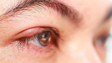 درمان شالازیون چیست و عوامل خطرزا کدامند؟