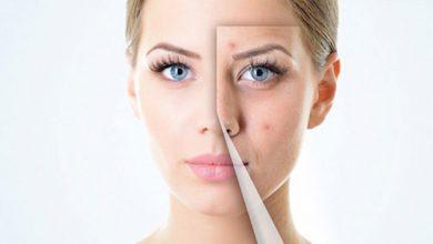 ژل آکدین (Acdin) و درمان آکنه های پوستی
