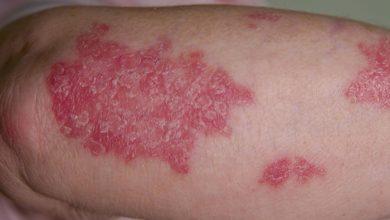 تصویر از علائم بیماری پسوریازیس و درمان آن