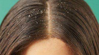۷ روش درمان طبیعی برای درمان فوری و قطعی شوره سر