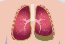 تصویر از آب آوردن ریه چیست؟ + علت، علائم و راه های درمان