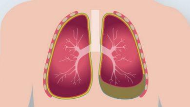 آب آوردن ریه چیست؟ + علت، علائم و راه های درمان
