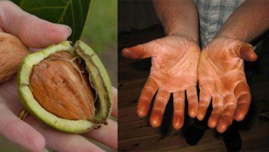 تصویر از نحوه تمیز کردن سیاهی گردو از دست