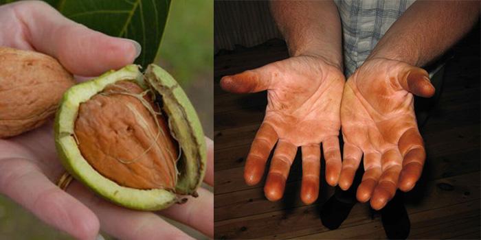 نحوه تمیز کردن سیاهی گردو از دست