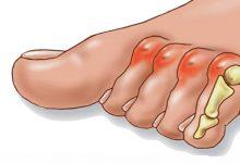 علت و علائم انگشت چکشی پا چیست و چگونه درمان میشود؟