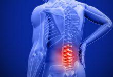علائم دیسک کمر و راه های تشخیص و درمان آن