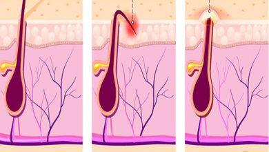 تصویر از راه های درمان موهای زیر پوستی ناحیه تناسلی