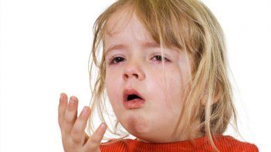 تصویر از خروسک در کودکان چیست؟ + علت، علائم و راه های درمان