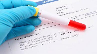تصویر از انواع آزمایش هپاتیت ب و تفسیر آنها