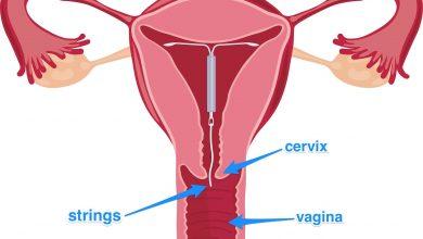 تصویر از حکم شرعی آی یو دی (دستگاه iud) برای جلوگیری از بارداری